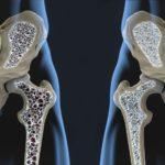骨から老化してしまう人の特徴まとめ